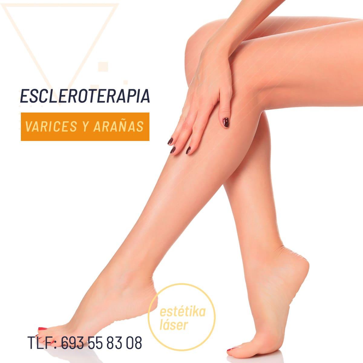 estetica avanzada murcia escleroterapia varices estrias 3